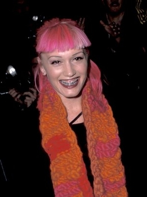 Gwen_stefani_dental_brace